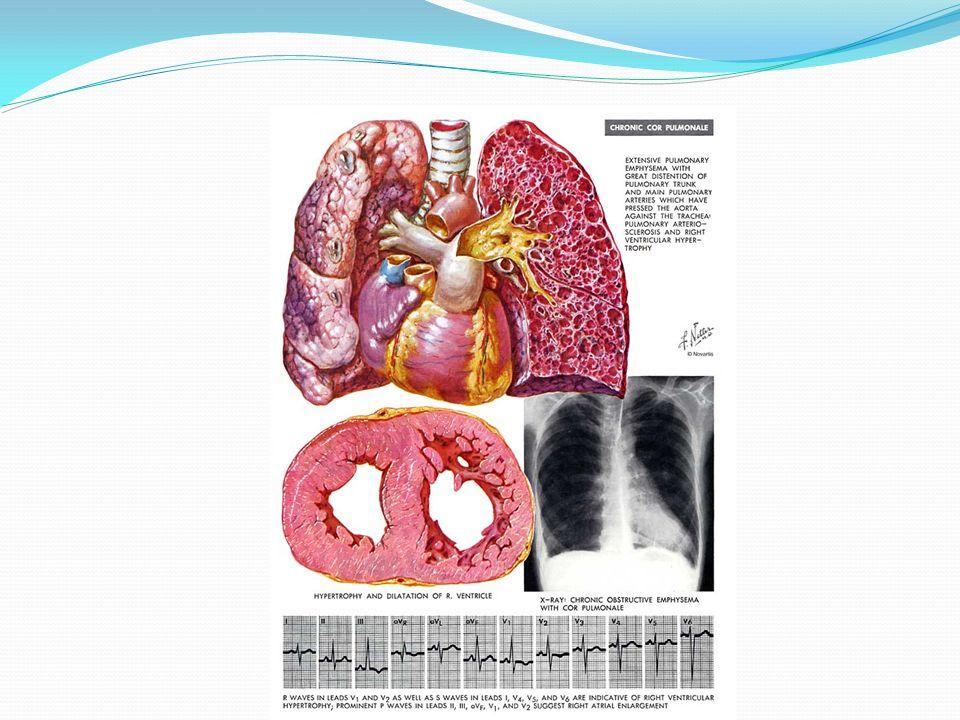 Etiología: Cardiopatía pulmonar crónica Enfermedades que producen vasoconstricción por hipoxia Enfermedades que causan obstrucción del lecho vascular pulmonar Enfermedades que causan trastornos parenquimatosos Bronquitis crónica EPOC Fibrosis quística Hipoventilación crónica Obesidad Enfermedad neuromuscular Disfunción de la pared torácica Vivir en grandes altitudes TEP recurrente Hipertensión pulmonar primaria Enfermedad venooclusiva Colagenopatías Neumopatía inducida por fármacos Bronquitis crónica EPOC Bronquiectasias Fibrosis quística Neumoconiosis Sarcoidosis Fibrosis pulmonar idiopática Fauci A, y cols.