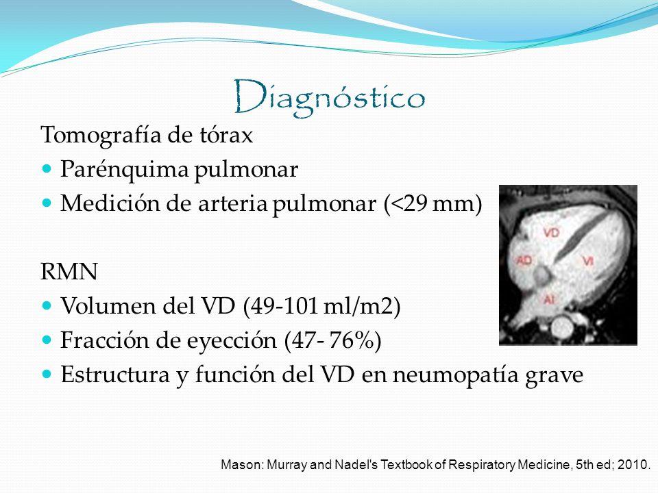 Diagnóstico Tomografía de tórax Parénquima pulmonar Medición de arteria pulmonar (<29 mm) RMN Volumen del VD (49-101 ml/m2) Fracción de eyección (47-