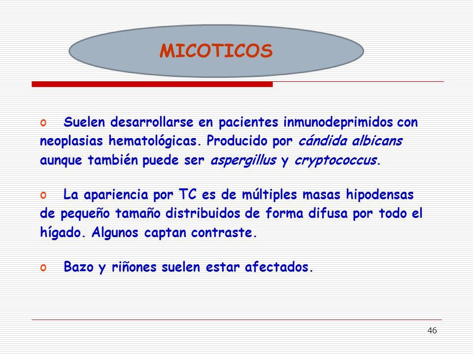 46 MICOTICOS oSuelen desarrollarse en pacientes inmunodeprimidos con neoplasias hematológicas.