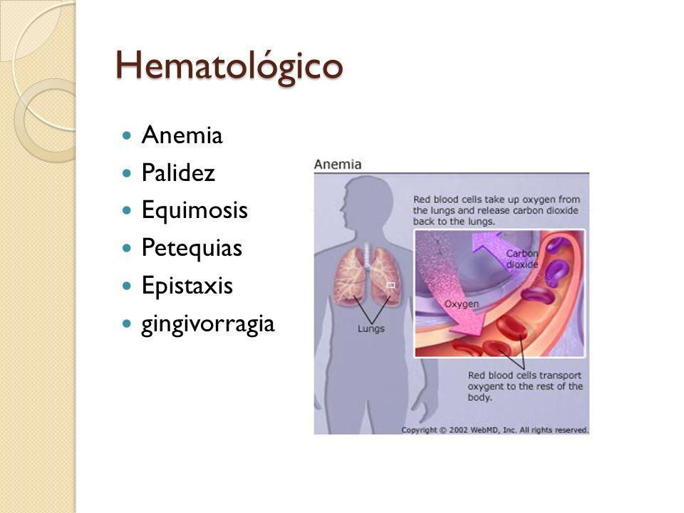 Hematológico Anemia Palidez Equimosis Petequias Epistaxis gingivorragia
