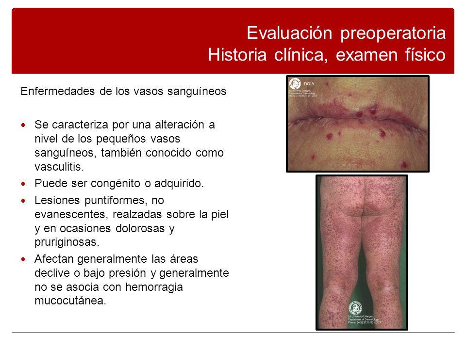 Enfermedades de los vasos sanguíneos Se caracteriza por una alteración a nivel de los pequeños vasos sanguíneos, también conocido como vasculitis.
