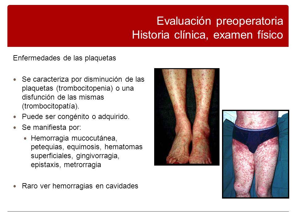 Enfermedades de las plaquetas Se caracteriza por disminución de las plaquetas (trombocitopenia) o una disfunción de las mismas (trombocitopatía).