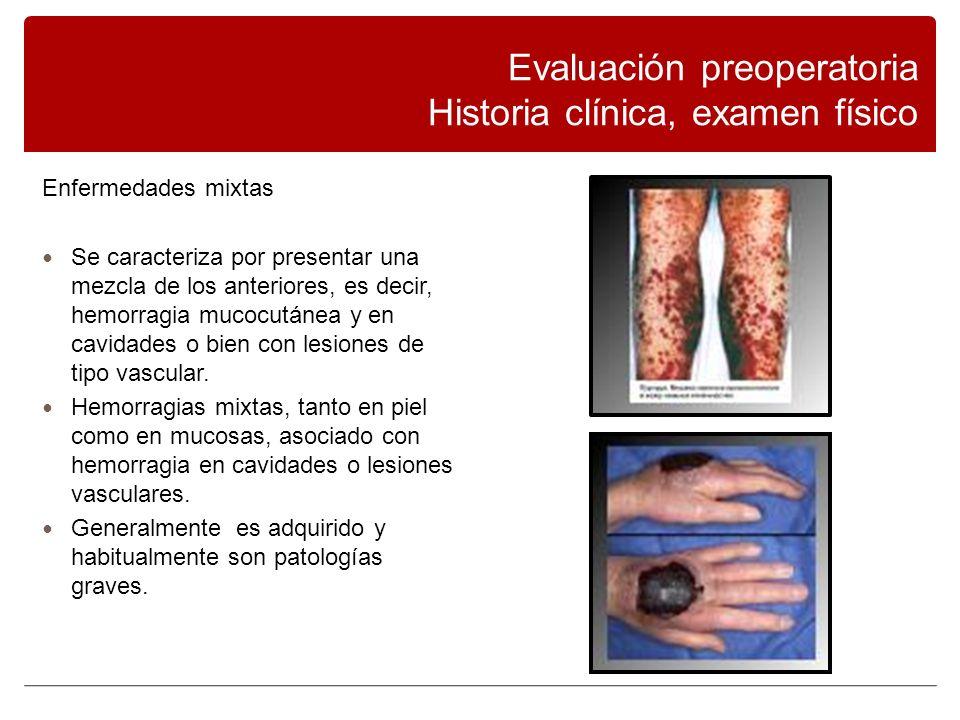 Enfermedades mixtas Se caracteriza por presentar una mezcla de los anteriores, es decir, hemorragia mucocutánea y en cavidades o bien con lesiones de tipo vascular.