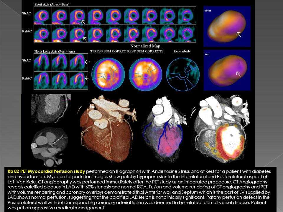 Rb 82 PET Myocardial Perfusion study performed on Biograph 64 with Andenosine Stress and at Rest for a patient with diabetes and hypertension. Myocard