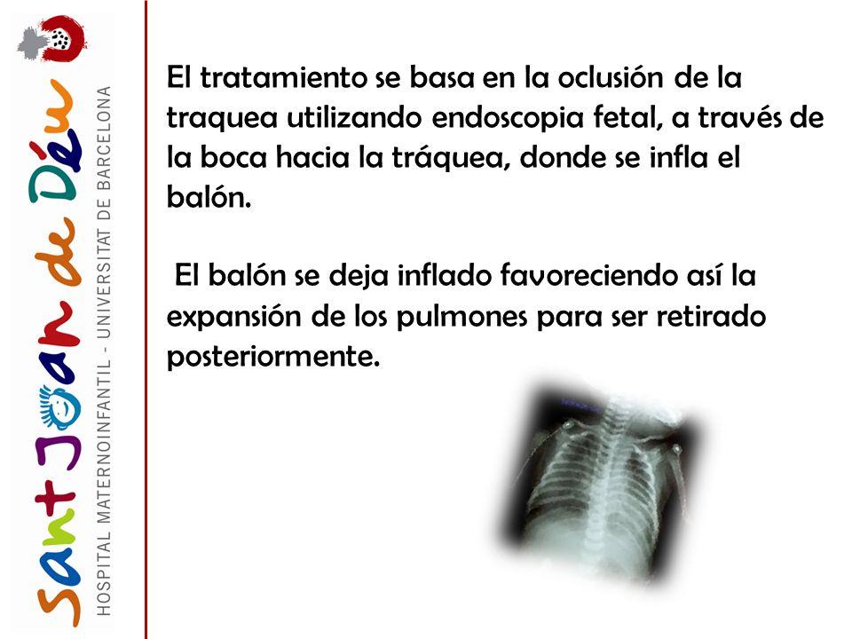 El tratamiento se basa en la oclusión de la traquea utilizando endoscopia fetal, a través de la boca hacia la tráquea, donde se infla el balón. El bal