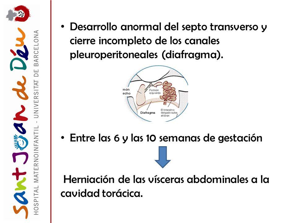 Desarrollo anormal del septo transverso y cierre incompleto de los canales pleuroperitoneales (diafragma). Entre las 6 y las 10 semanas de gestación H