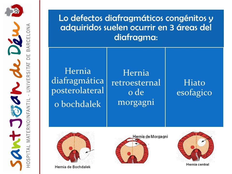 EPIDEMIOLOGÍA : 1 de cada 3.000 nacidos vivos En aproximadamente el 60% ocurre de forma aislada sin otras anomalías congénitas.