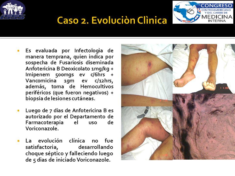 Es evaluada por Infectologìa de manera temprana, quien indica por sospecha de Fusariosis diseminada Anfotericina B Deoxicolato 1mg/kg + Imipenem 500mg