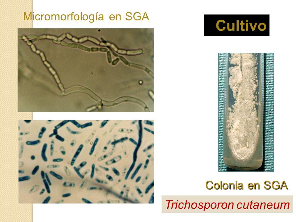 Cultivo Colonia en SGA Micromorfología en SGA Trichosporon cutaneum