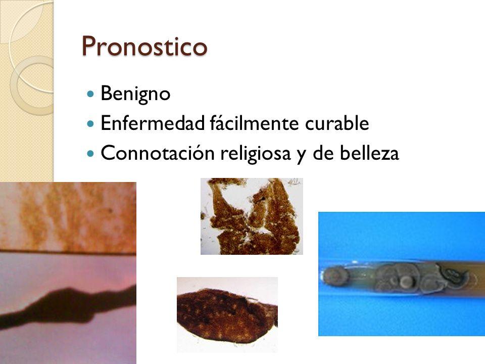 Pronostico Benigno Enfermedad fácilmente curable Connotación religiosa y de belleza