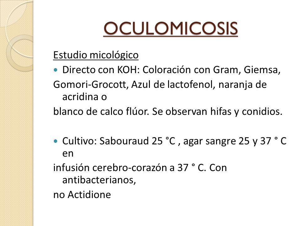 OCULOMICOSIS Estudio micológico Directo con KOH: Coloración con Gram, Giemsa, Gomori-Grocott, Azul de lactofenol, naranja de acridina o blanco de calco flúor.