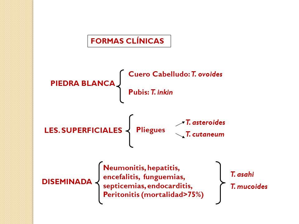 FORMAS CLÍNICAS PIEDRA BLANCA Cuero Cabelludo: T. ovoides Pubis: T. inkin LES. SUPERFICIALES Pliegues T. asteroides T. cutaneum DISEMINADA Neumonitis,