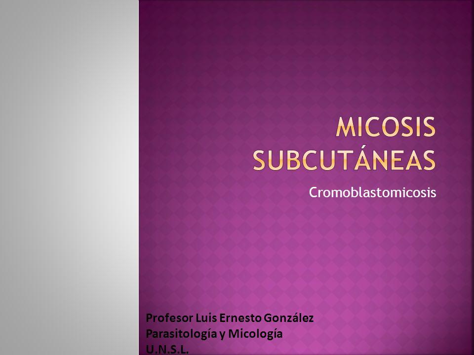 Cromoblastomicosis Profesor Luis Ernesto González Parasitología y Micología U.N.S.L.