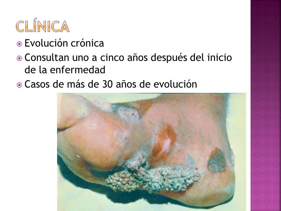 Evolución crónica Consultan uno a cinco años después del inicio de la enfermedad Casos de más de 30 años de evolución