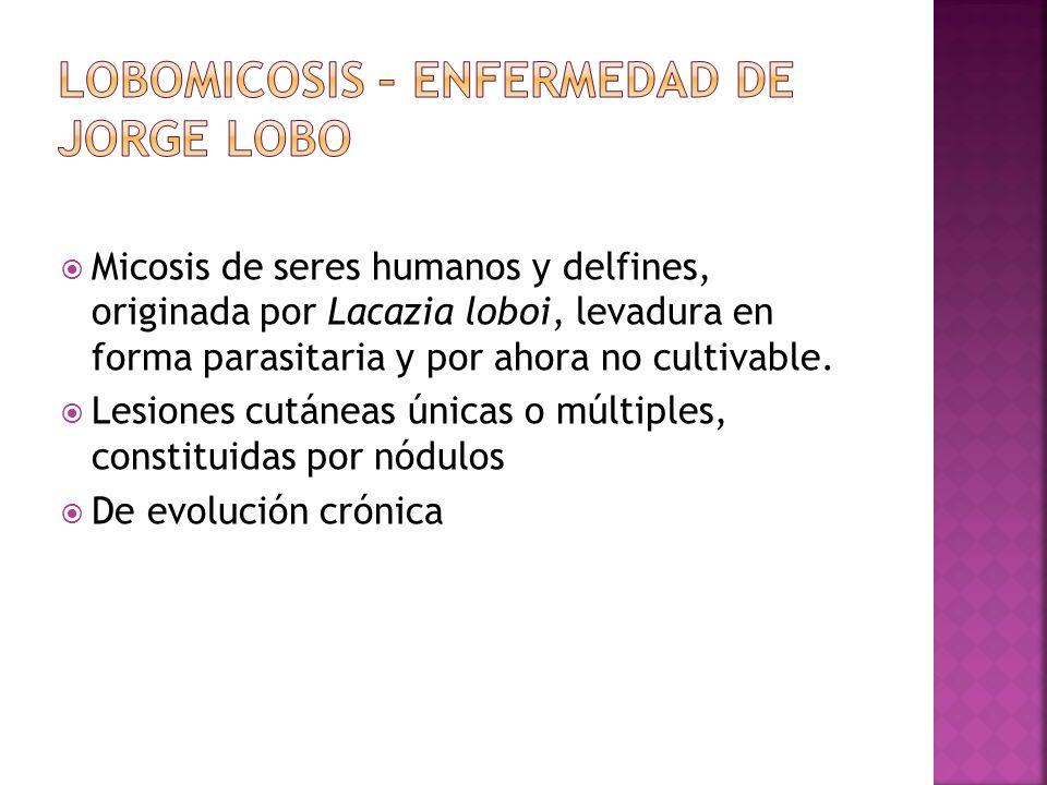 Micosis de seres humanos y delfines, originada por Lacazia loboi, levadura en forma parasitaria y por ahora no cultivable. Lesiones cutáneas únicas o