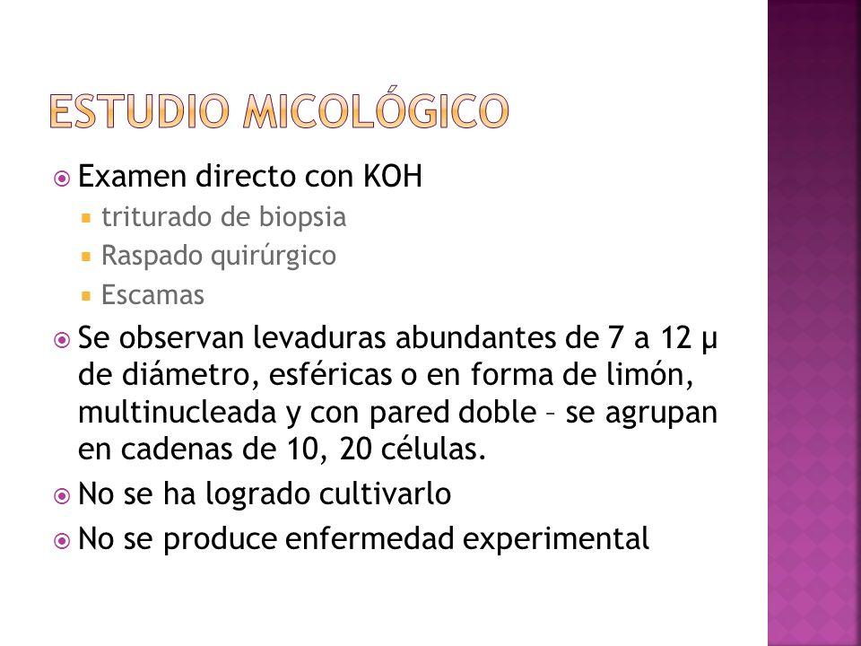 Examen directo con KOH triturado de biopsia Raspado quirúrgico Escamas Se observan levaduras abundantes de 7 a 12 µ de diámetro, esféricas o en forma