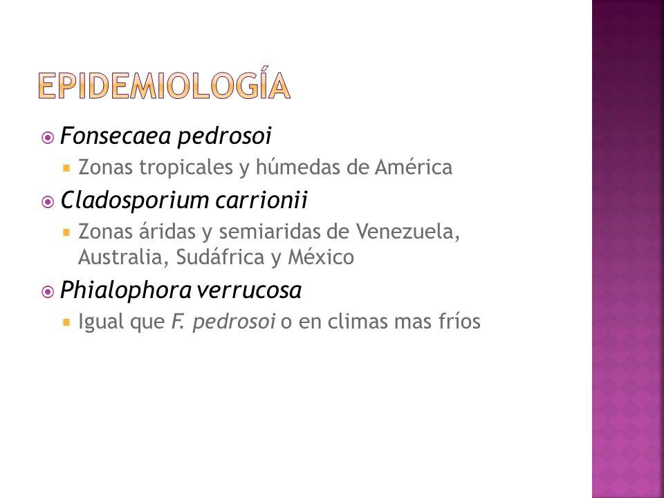 Fonsecaea pedrosoi Zonas tropicales y húmedas de América Cladosporium carrionii Zonas áridas y semiaridas de Venezuela, Australia, Sudáfrica y México