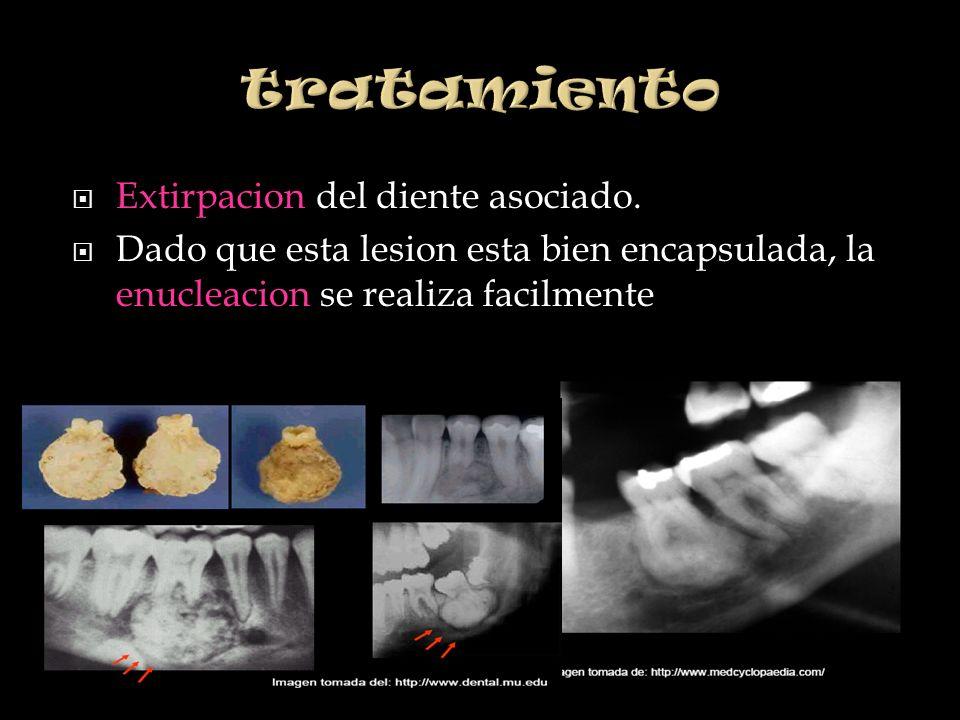 Extirpacion del diente asociado. Dado que esta lesion esta bien encapsulada, la enucleacion se realiza facilmente