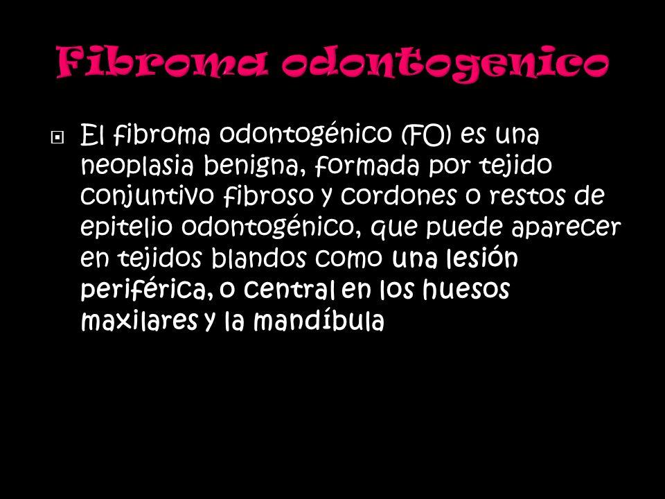 El fibroma odontogénico (FO) es una neoplasia benigna, formada por tejido conjuntivo fibroso y cordones o restos de epitelio odontogénico, que puede a