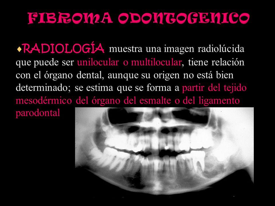 FIBROMA ODONTOGENICO RADIOLOGÍA muestra una imagen radiolúcida que puede ser unilocular o multilocular, tiene relación con el órgano dental, aunque su origen no está bien determinado; se estima que se forma a partir del tejido mesodérmico del órgano del esmalte o del ligamento parodontal