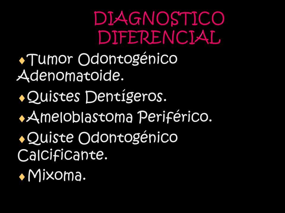 DIAGNOSTICO DIFERENCIAL Tumor Odontogénico Adenomatoide.