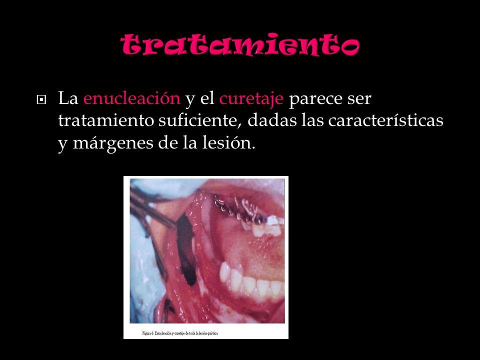 La enucleación y el curetaje parece ser tratamiento suficiente, dadas las características y márgenes de la lesión.