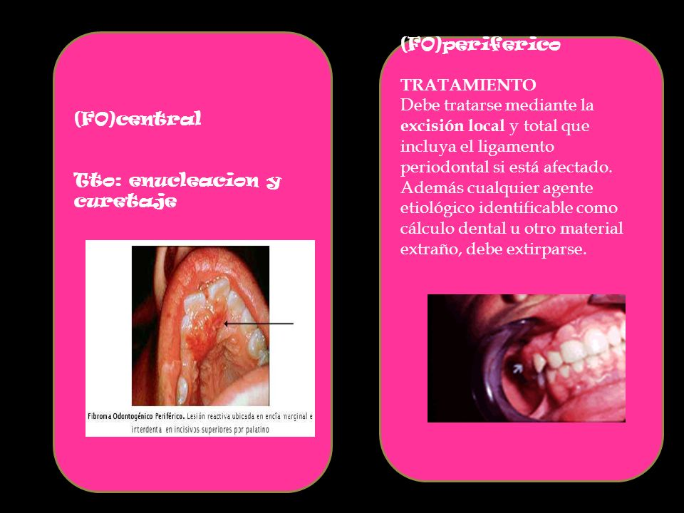 (FO)central Tto: enucleacion y curetaje (FO)periferico TRATAMIENTO Debe tratarse mediante la excisión local y total que incluya el ligamento periodontal si está afectado.