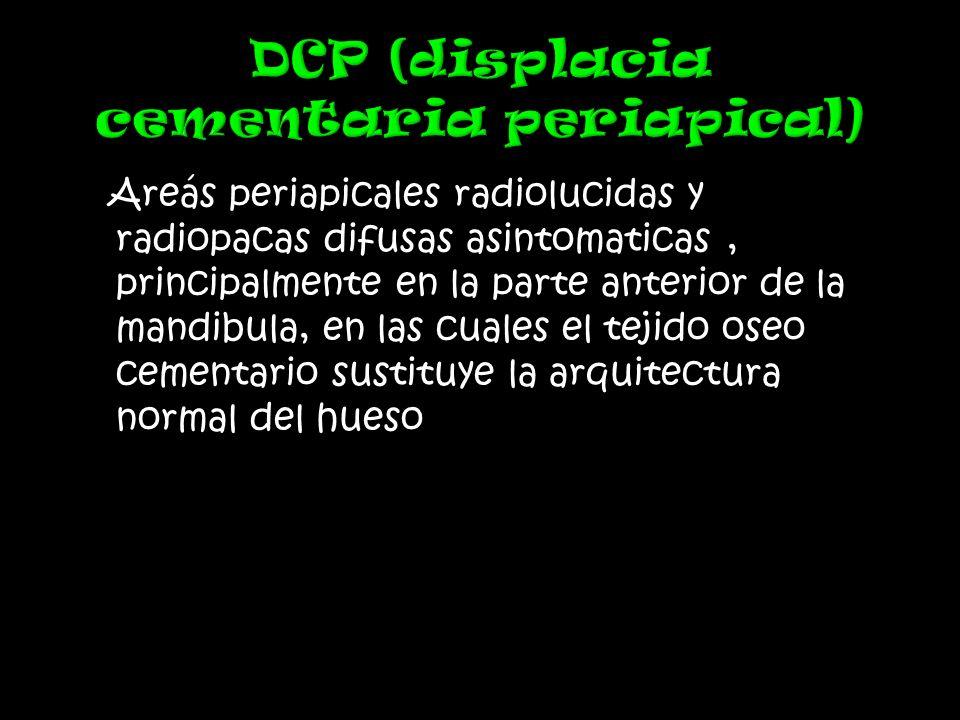Areás periapicales radiolucidas y radiopacas difusas asintomaticas, principalmente en la parte anterior de la mandibula, en las cuales el tejido oseo cementario sustituye la arquitectura normal del hueso