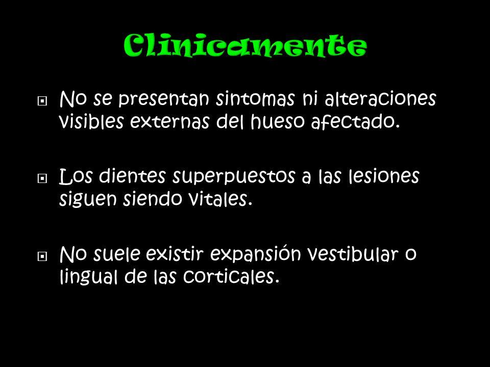 No se presentan sintomas ni alteraciones visibles externas del hueso afectado.