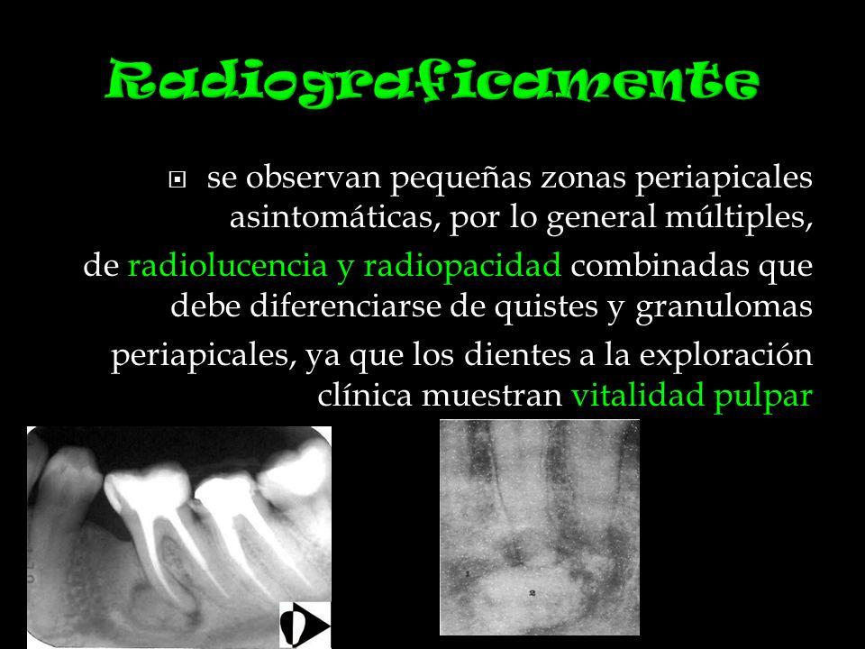se observan pequeñas zonas periapicales asintomáticas, por lo general múltiples, de radiolucencia y radiopacidad combinadas que debe diferenciarse de quistes y granulomas periapicales, ya que los dientes a la exploración clínica muestran vitalidad pulpar