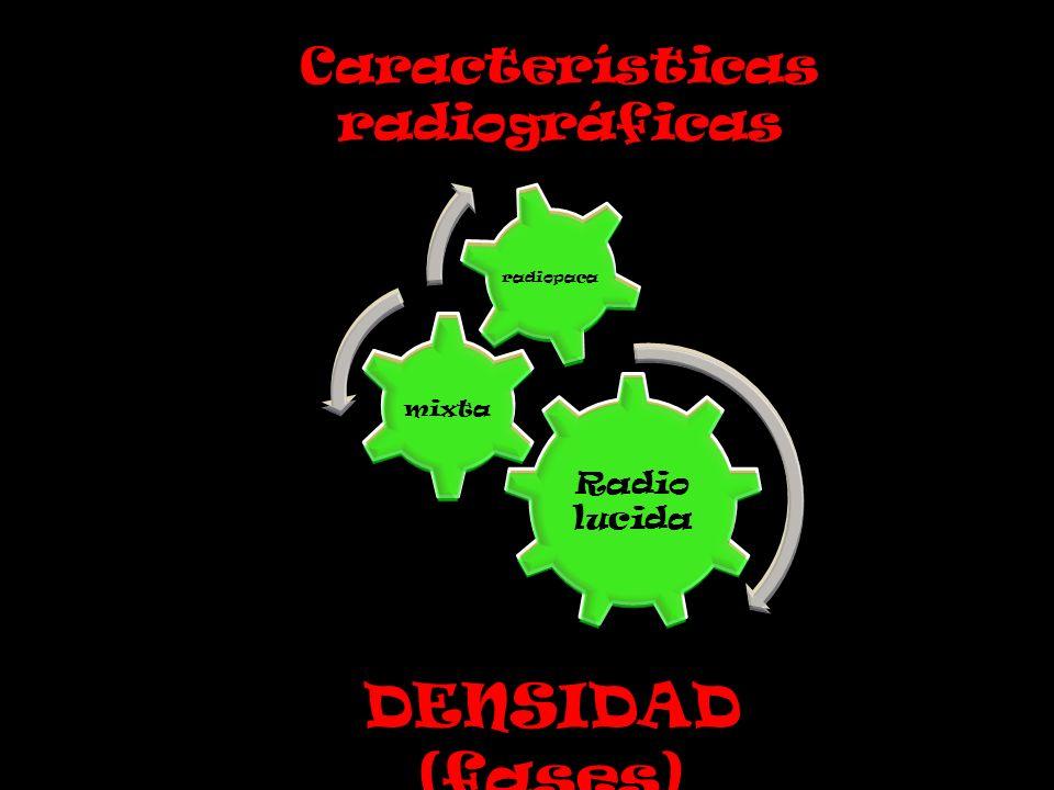 Radio lucida mixta radiopaca Características radiográficas DENSIDAD (fases)