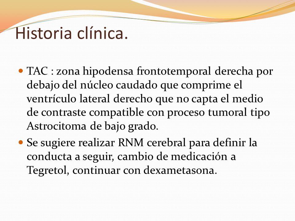 Historia clínica. TAC : zona hipodensa frontotemporal derecha por debajo del núcleo caudado que comprime el ventrículo lateral derecho que no capta el