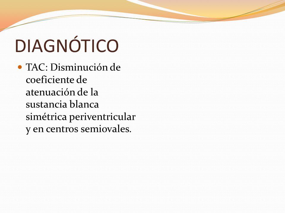 DIAGNÓTICO TAC: Disminución de coeficiente de atenuación de la sustancia blanca simétrica periventricular y en centros semiovales.