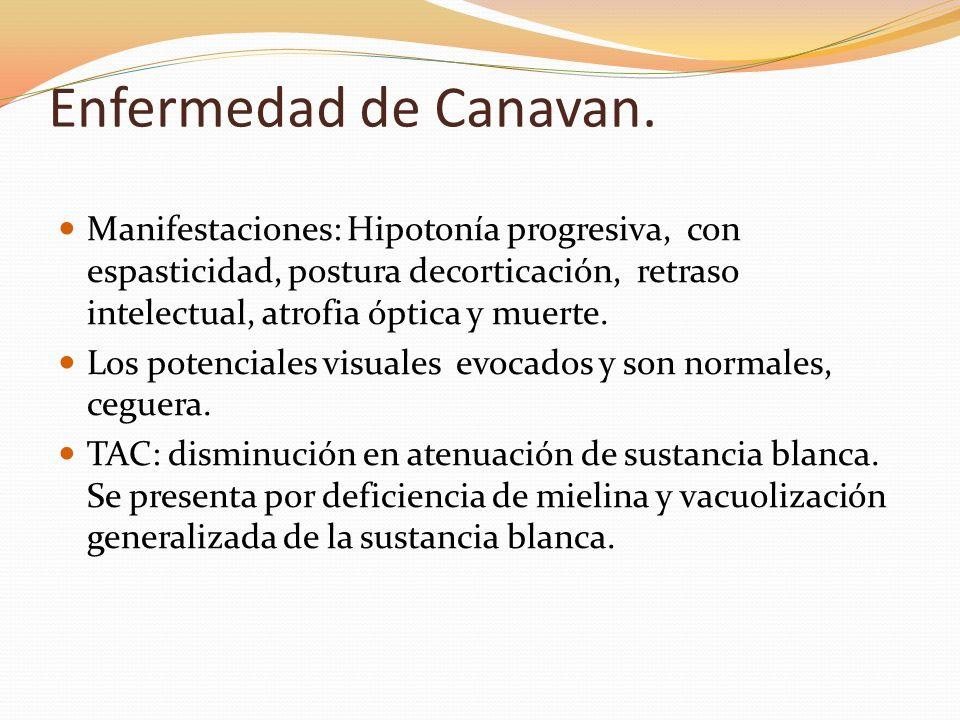 Enfermedad de Canavan. Manifestaciones: Hipotonía progresiva, con espasticidad, postura decorticación, retraso intelectual, atrofia óptica y muerte. L