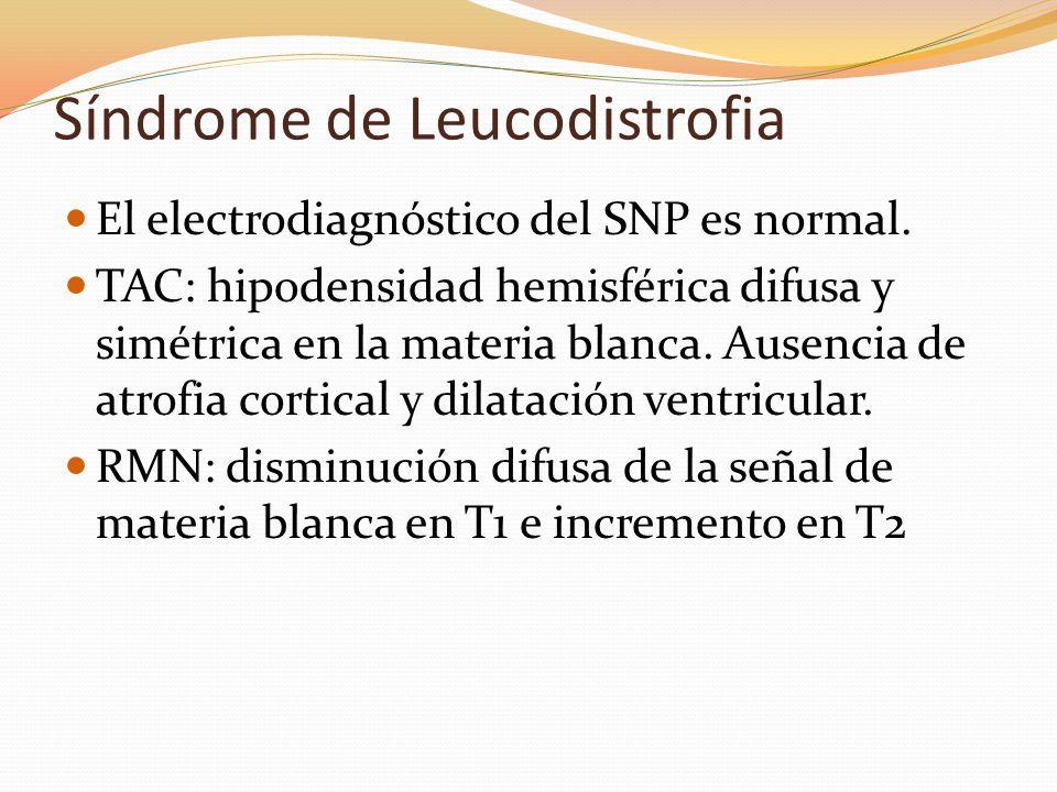 Síndrome de Leucodistrofia El electrodiagnóstico del SNP es normal. TAC: hipodensidad hemisférica difusa y simétrica en la materia blanca. Ausencia de