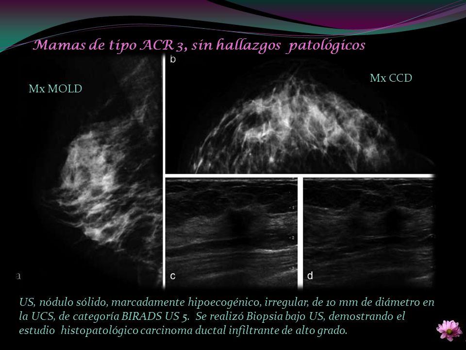 Mx MOLD Mx CCD Mamas de tipo ACR 3, sin hallazgos patológicos US, nódulo sólido, marcadamente hipoecogénico, irregular, de 10 mm de diámetro en la UCS