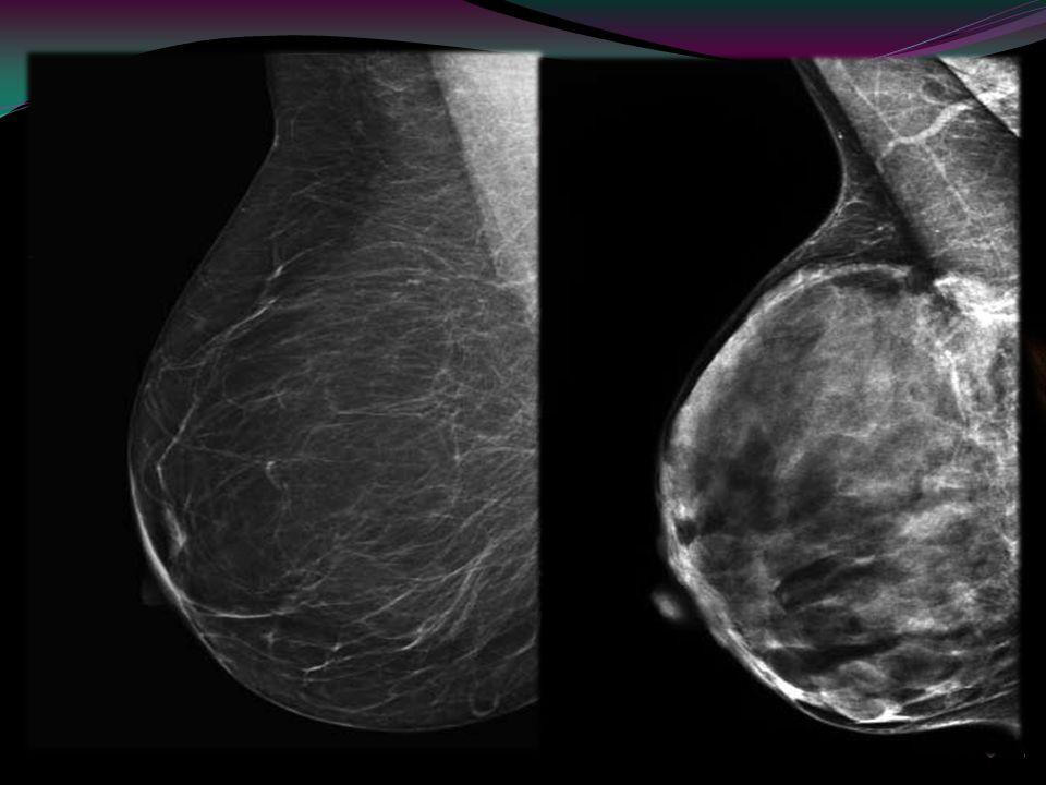 El cáncer de mama es la segunda causa de muerte por tumores en mujeres. La mamografía es el examen de referencia en su diagnóstico, siendo por el mome