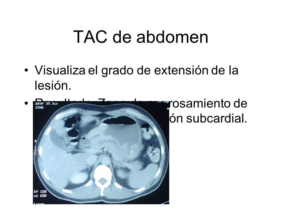 TAC de abdomen Visualiza el grado de extensión de la lesión. Resultado: Zona de engrosamiento de la pared gástrica en región subcardial.