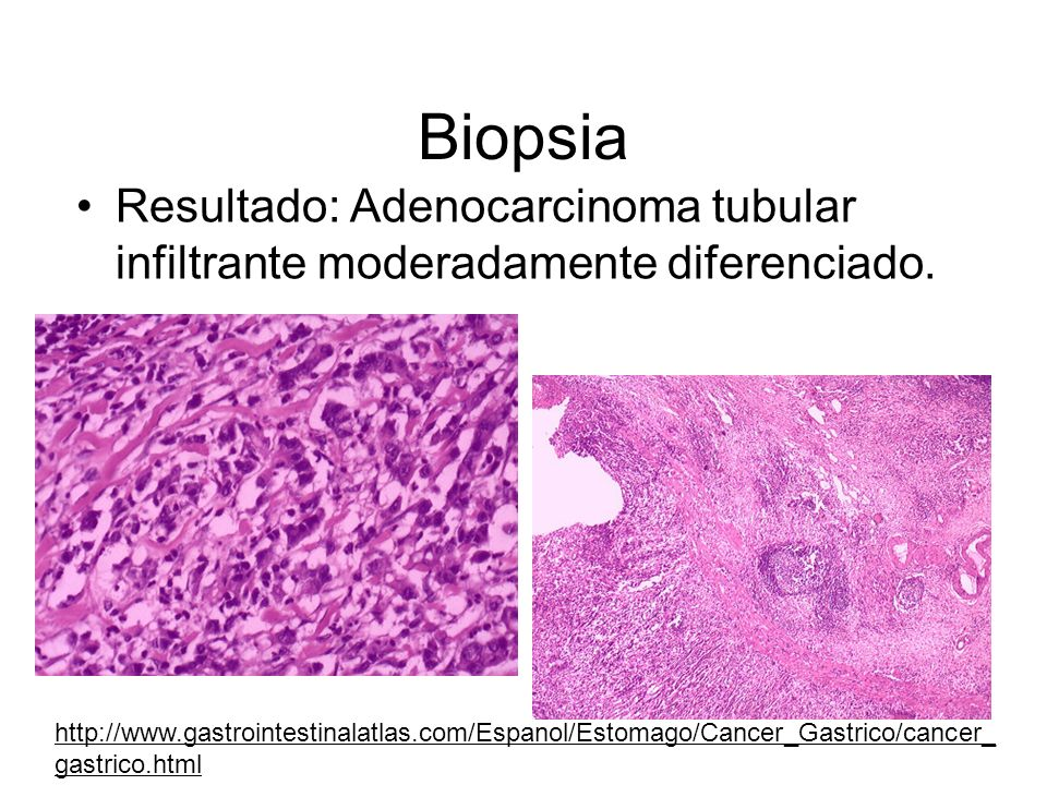Biopsia Resultado: Adenocarcinoma tubular infiltrante moderadamente diferenciado. http://www.gastrointestinalatlas.com/Espanol/Estomago/Cancer_Gastric