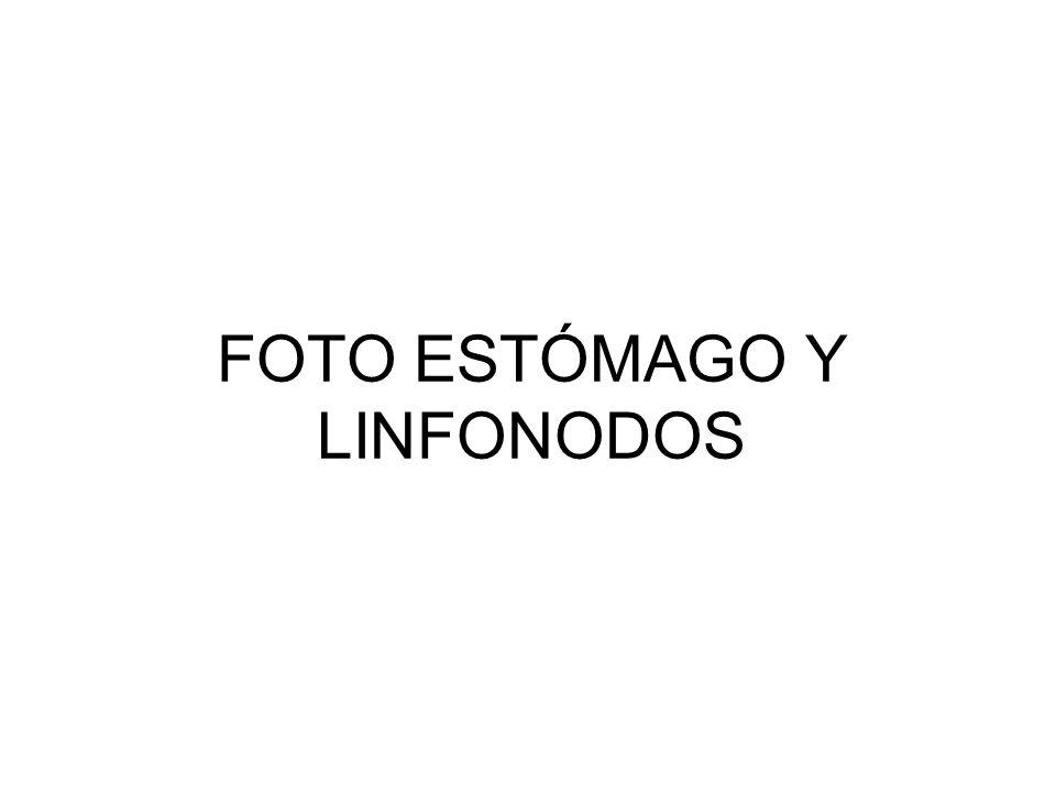 FOTO ESTÓMAGO Y LINFONODOS