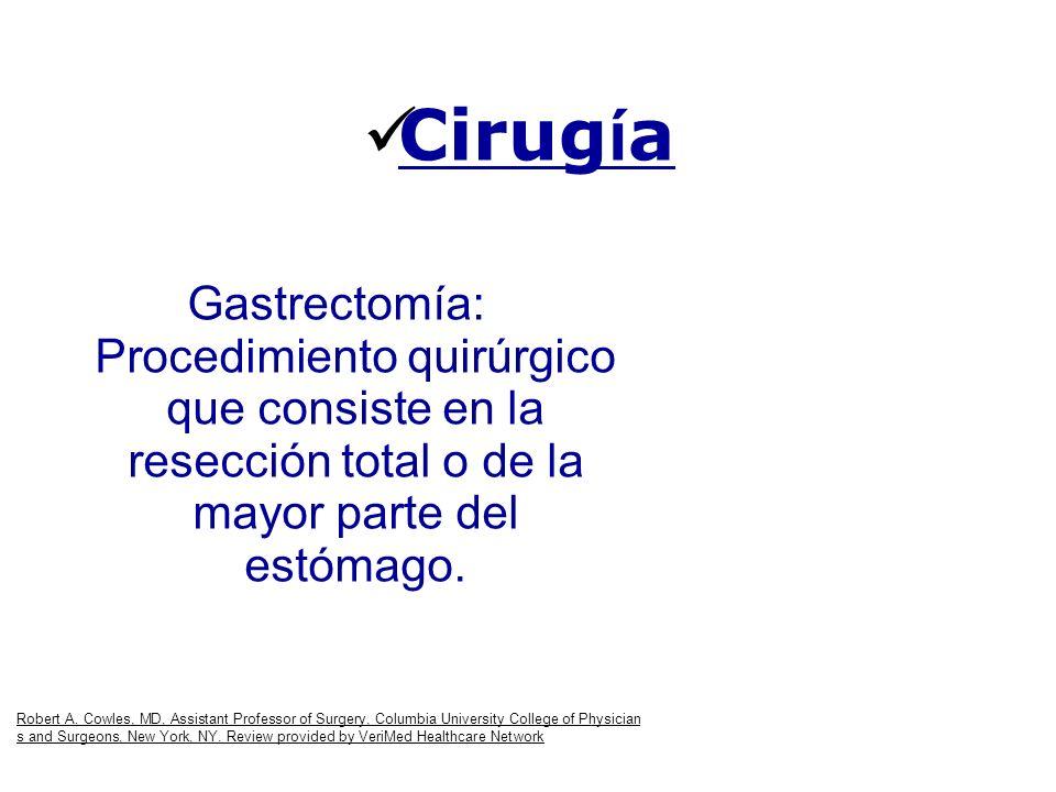 Cirug í a Gastrectomía: Procedimiento quirúrgico que consiste en la resección total o de la mayor parte del estómago. Robert A. Cowles, MD, Assistant