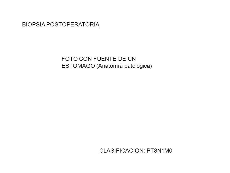 BIOPSIA POSTOPERATORIA CLASIFICACION: PT3N1M0 FOTO CON FUENTE DE UN ESTOMAGO (Anatomía patológica)