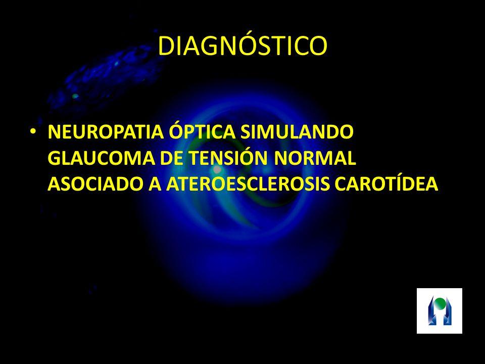 DIAGNÓSTICO NEUROPATIA ÓPTICA SIMULANDO GLAUCOMA DE TENSIÓN NORMAL ASOCIADO A ATEROESCLEROSIS CAROTÍDEA