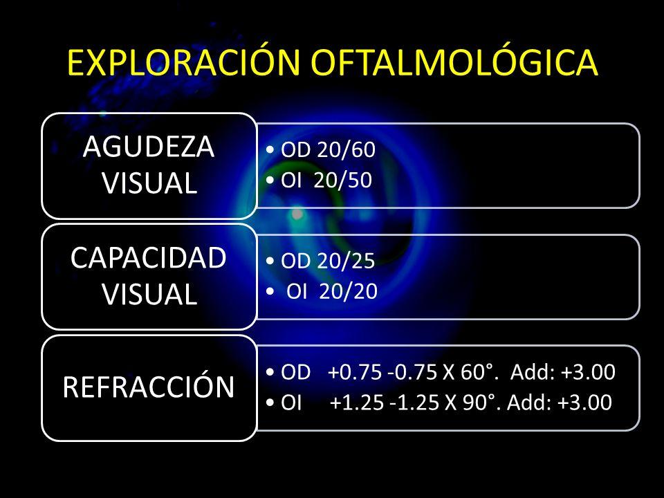 EXPLORACIÓN OFTALMOLÓGICA OD 20/60 OI 20/50 AGUDEZA VISUAL OD 20/25 OI 20/20 CAPACIDAD VISUAL OD +0.75 -0.75 X 60°.