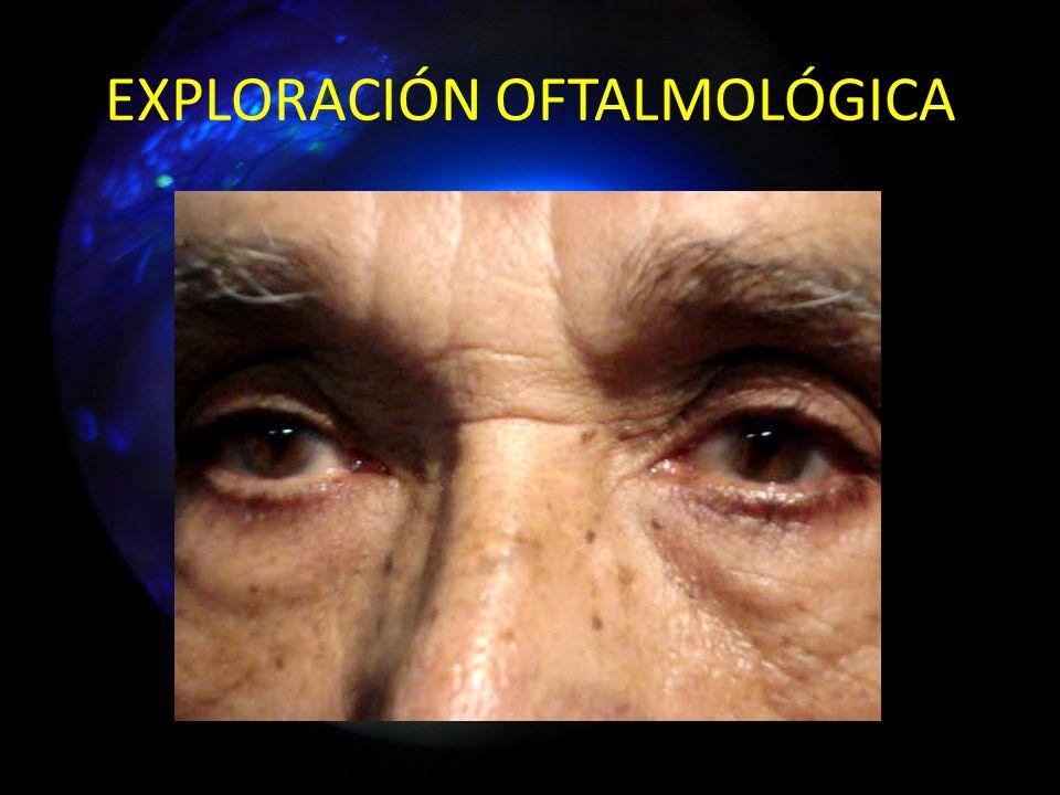 OD Normal 14 mmHg IV Schaffer BMSA TO Gonioscopía OI Normal 13 mmHg IV Schaffer