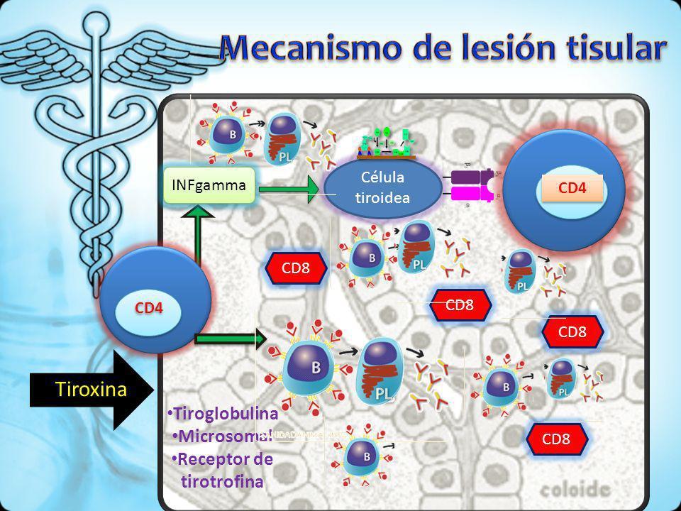 CD4 INFgamma INFgamma Célula tiroidea CD4 Tiroglobulina Microsomal Receptor de tirotrofina CD8 CD8 CD8 CD8 Tiroxina