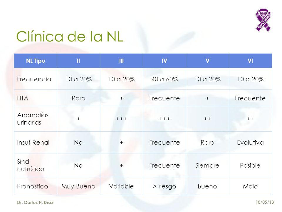 Clínica de la NL NL TipoIIIIIIVVVI Frecuencia10 a 20% 40 a 60%10 a 20% HTARaro+Frecuente+ Anomalías urinarias ++++ ++ Insuf RenalNo+FrecuenteRaroEvolutiva Sínd nefrótico No+FrecuenteSiemprePosible PronósticoMuy BuenoVariable> riesgoBuenoMalo Dr.