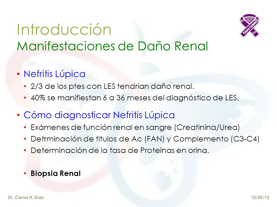 Nefritis Lúpica Dr. Carlos H. Diaz 10/05/13