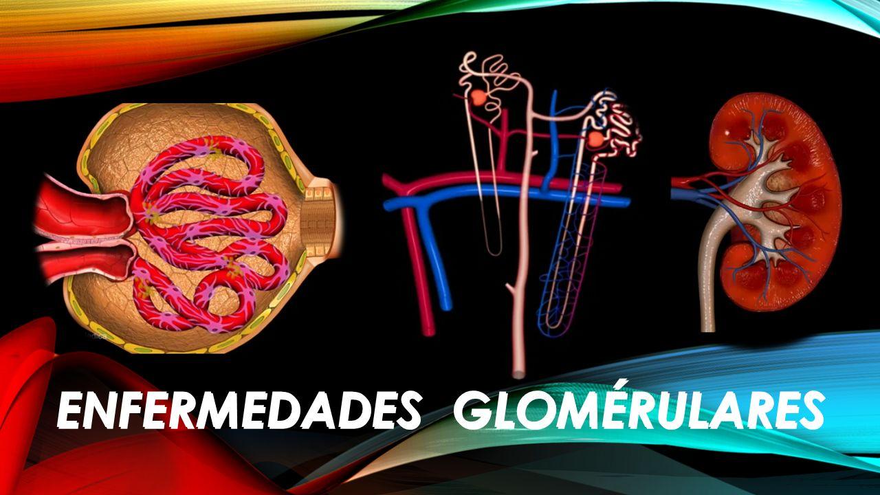 ENFERMEDADES GLOMÉRULARES