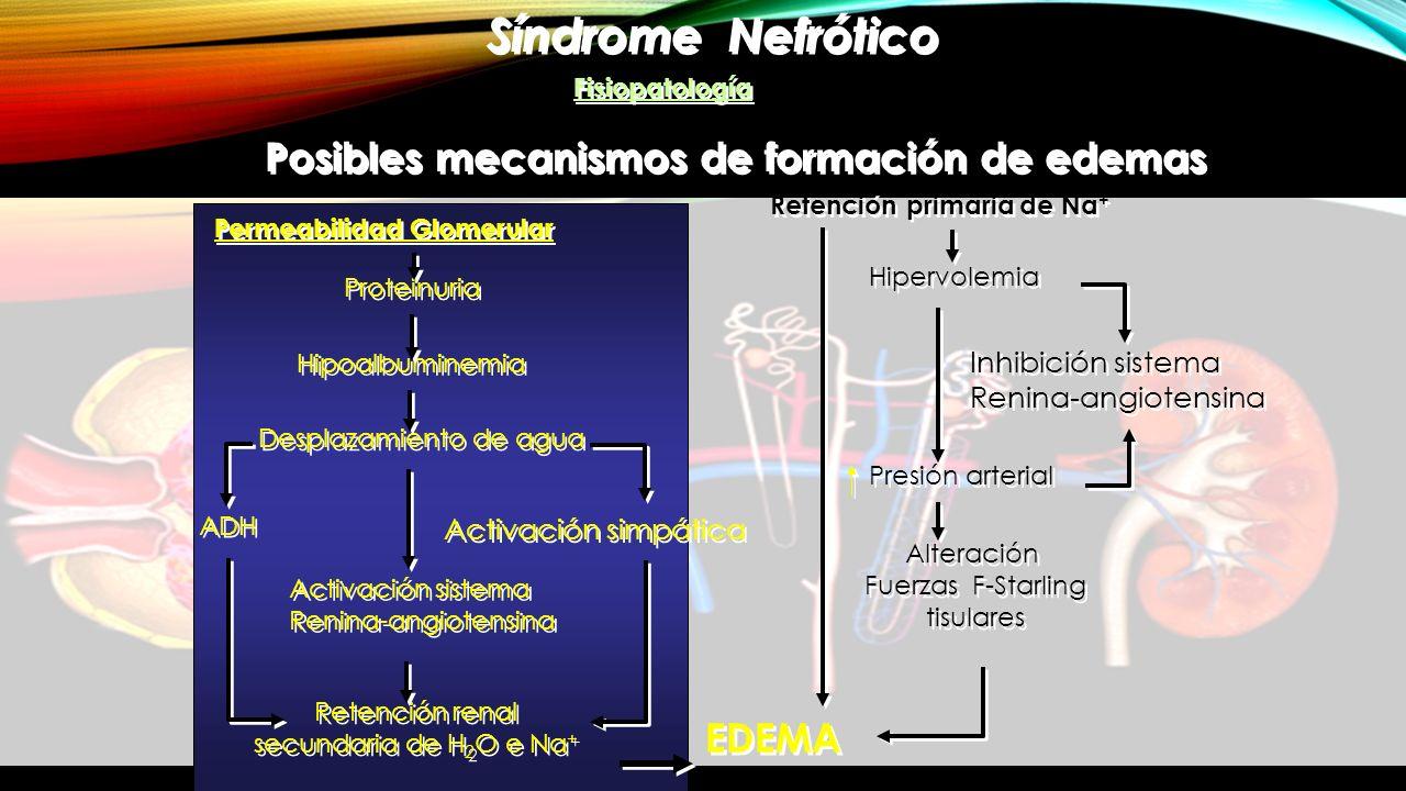 Síndrome Nefrótico Fisiopatología Posibles mecanismos de formación de edemas EDEMA Permeabilidad Glomerular Proteinuria Hipoalbuminemia Desplazamiento